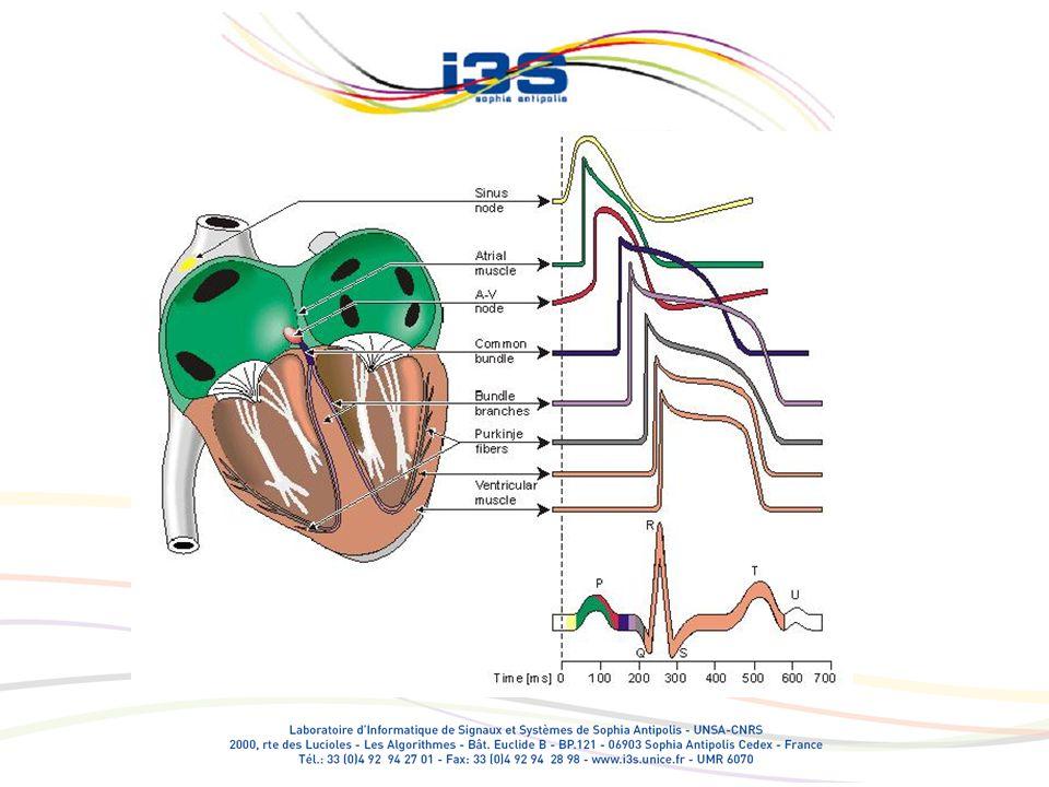 Variabilité des intervalles cardiaques Estimation des intervalles R-R, P-R (repos/effort) Pb de ligne de base Pb de superposition des ondes Pb de changement de forme Analyse des tendances et des variabilités Caractérisation Interprétation (couplage central, mécanique, …)