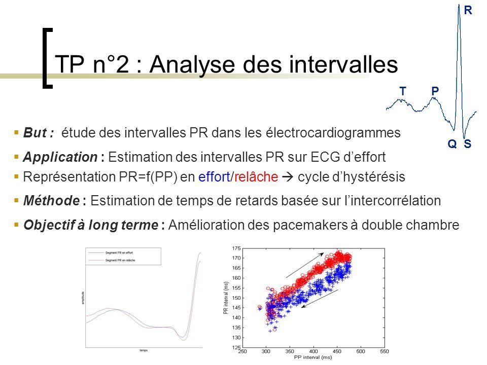 TP R QS TP n°2 : Analyse des intervalles But : étude des intervalles PR dans les électrocardiogrammes Application : Estimation des intervalles PR sur