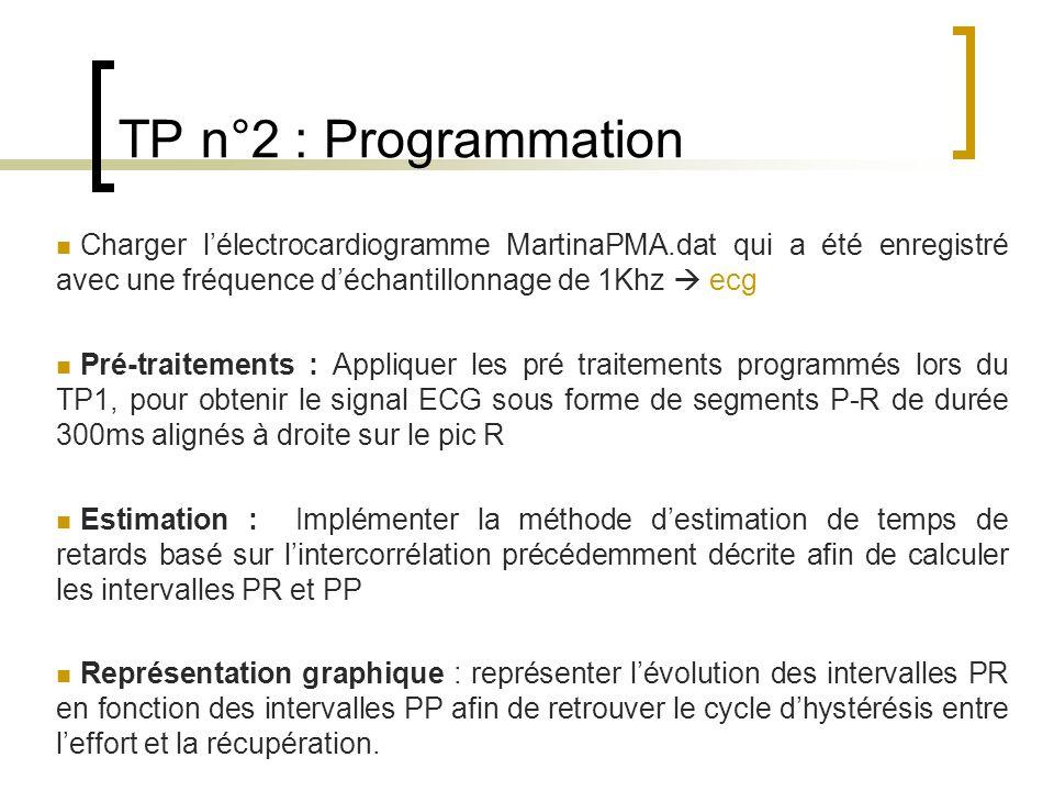 TP n°2 : Programmation Charger lélectrocardiogramme MartinaPMA.dat qui a été enregistré avec une fréquence déchantillonnage de 1Khz ecg Pré-traitement