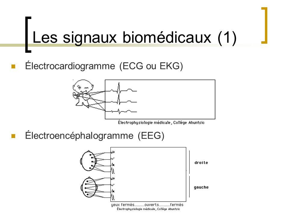 Les signaux biomédicaux (1) Électrocardiogramme (ECG ou EKG) Électroencéphalogramme (EEG)