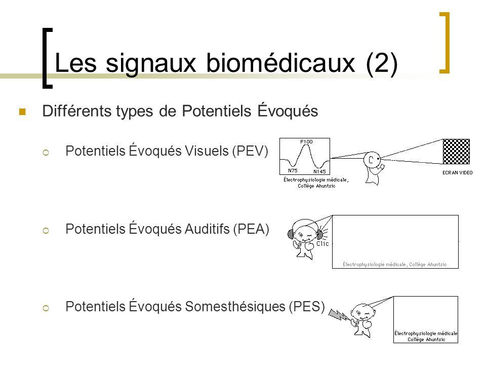 Les signaux biomédicaux (2) Différents types de Potentiels Évoqués Potentiels Évoqués Visuels (PEV) Potentiels Évoqués Auditifs (PEA) Potentiels Évoqu