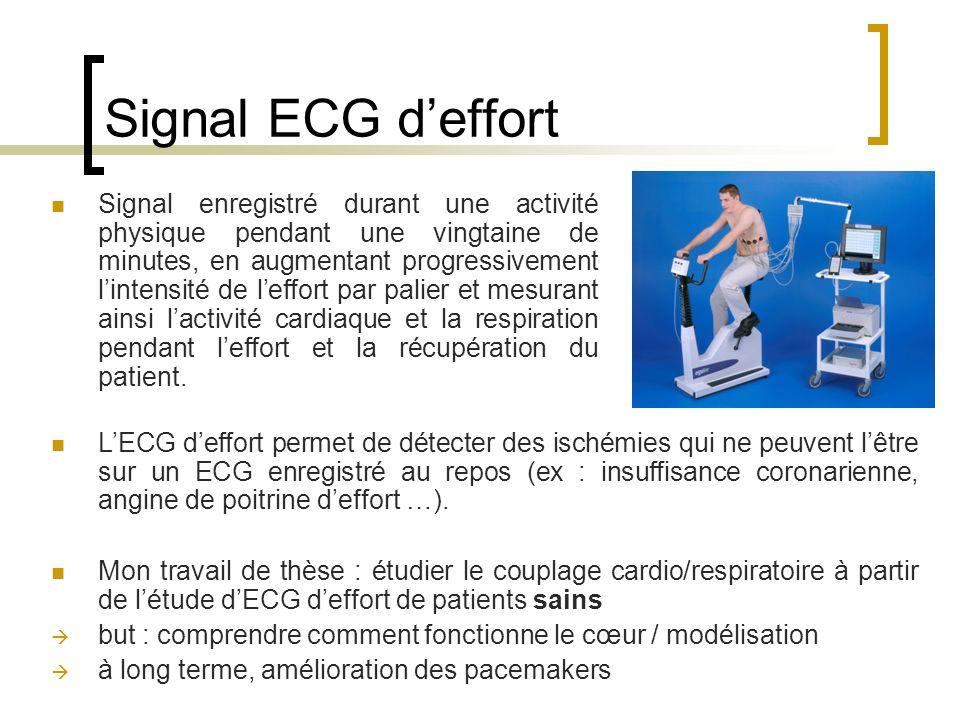 Signal ECG deffort Signal enregistré durant une activité physique pendant une vingtaine de minutes, en augmentant progressivement lintensité de leffor