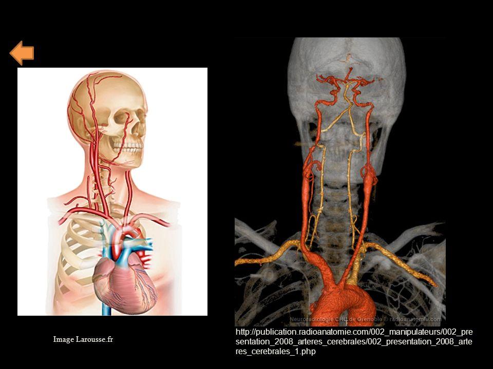 Image Larousse.fr http://publication.radioanatomie.com/002_manipulateurs/002_pre sentation_2008_arteres_cerebrales/002_presentation_2008_arte res_cere