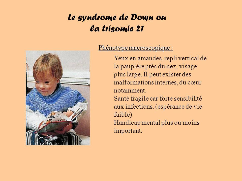 Le syndrome de Down ou la trisomie 21 Phénotype macroscopique : Yeux en amandes, repli vertical de la paupière près du nez, visage plus large.