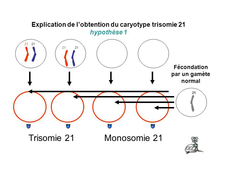 Explication de lobtention du caryotype trisomie 21 hypothèse 1 21 Fécondation par un gamète normal 21 Trisomie 21Monosomie 21
