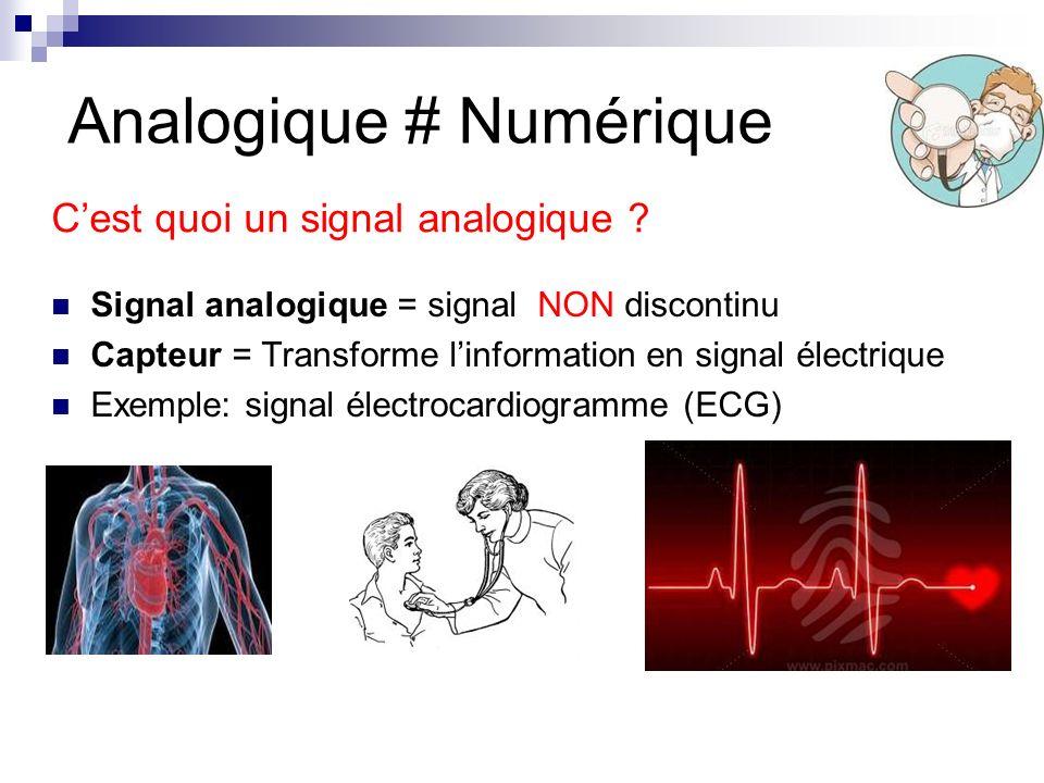 Analogique # Numérique Signal analogique = signal NON discontinu Capteur = Transforme linformation en signal électrique Exemple: signal électrocardiog