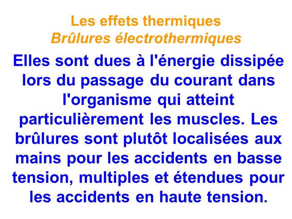 Les effets thermiques Brûlures électrothermiques Elles sont dues à l'énergie dissipée lors du passage du courant dans l'organisme qui atteint particul