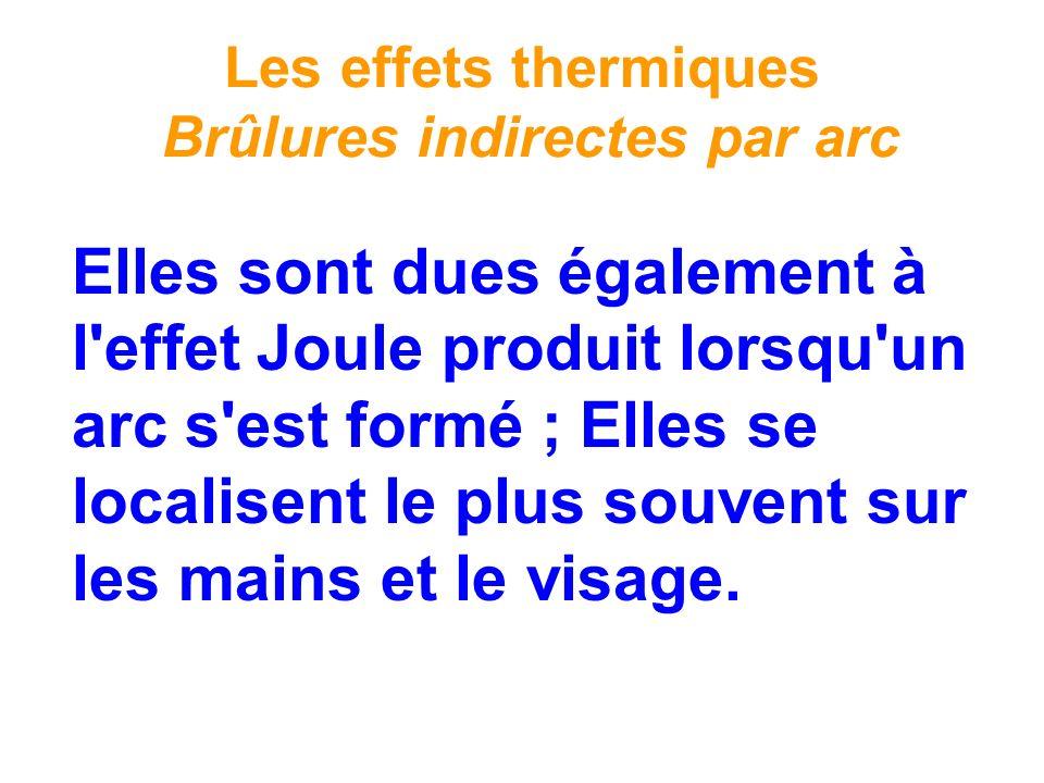 Les effets thermiques Brûlures indirectes par arc Elles sont dues également à l'effet Joule produit lorsqu'un arc s'est formé ; Elles se localisent le
