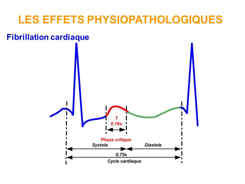 Fibrillation cardiaque Elle entraîne un arrêt circulatoire qui provoque la mort de la plupart des électrisés.