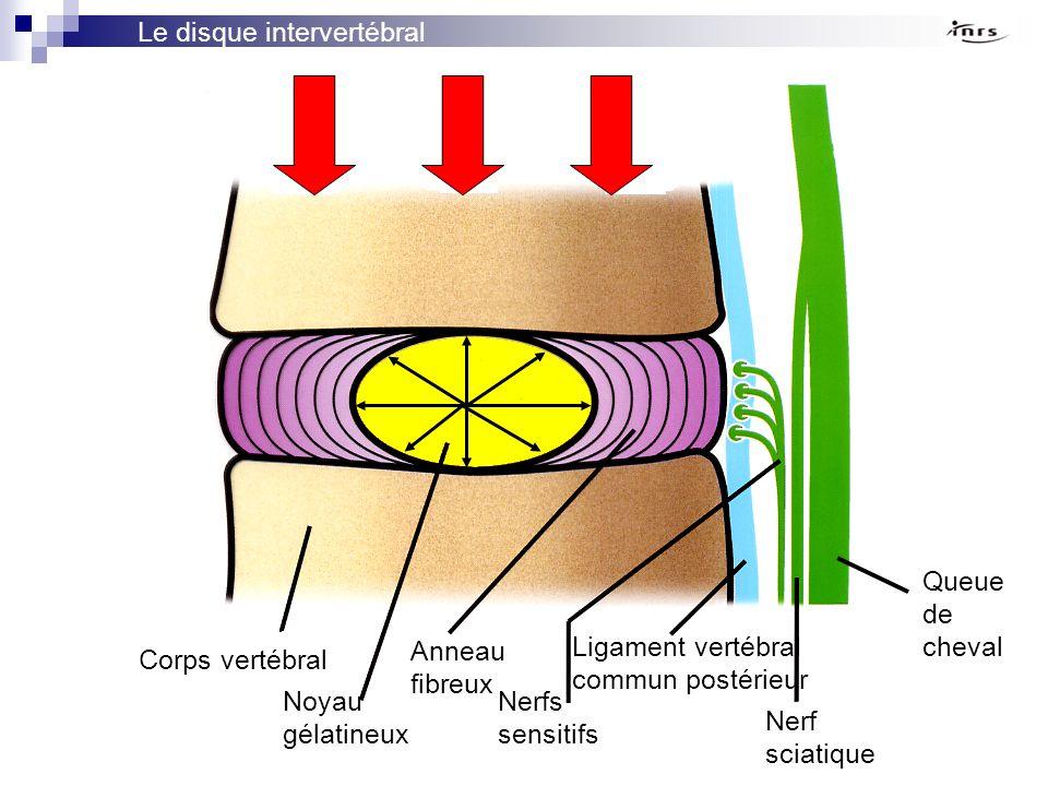 Corps vertébral Noyau gélatineux Anneau fibreux Nerfs sensitifs Ligament vertébral commun postérieur Nerf sciatique Queue de cheval