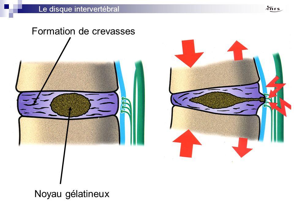 Le disque intervertébral Noyau gélatineux Formation de crevasses