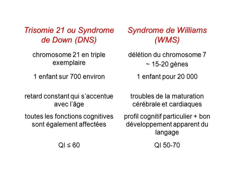 Trisomie 21 ou Syndrome de Down (DNS) Syndrome de Williams (WMS) chromosome 21 en triple exemplaire délétion du chromosome 7 ~ 15-20 gènes 1 enfant su