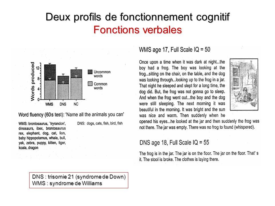 Deux profils de fonctionnement cognitif Fonctions verbales DNS : trisomie 21 (syndrome de Down) WMS : syndrome de Williams