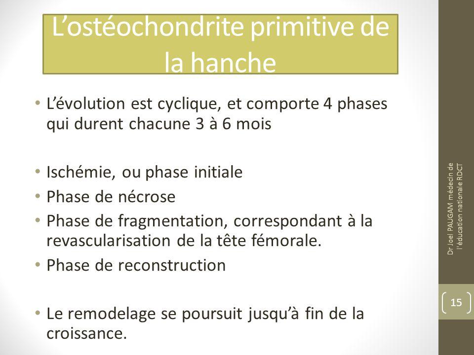 Lostéochondrite primitive de la hanche Lévolution est cyclique, et comporte 4 phases qui durent chacune 3 à 6 mois Ischémie, ou phase initiale Phase de nécrose Phase de fragmentation, correspondant à la revascularisation de la tête fémorale.