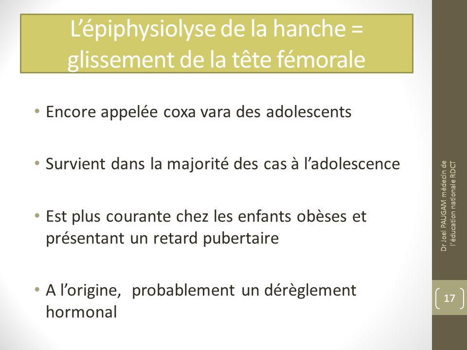 Lépiphysiolyse de la hanche = glissement de la tête fémorale Encore appelée coxa vara des adolescents Survient dans la majorité des cas à ladolescence