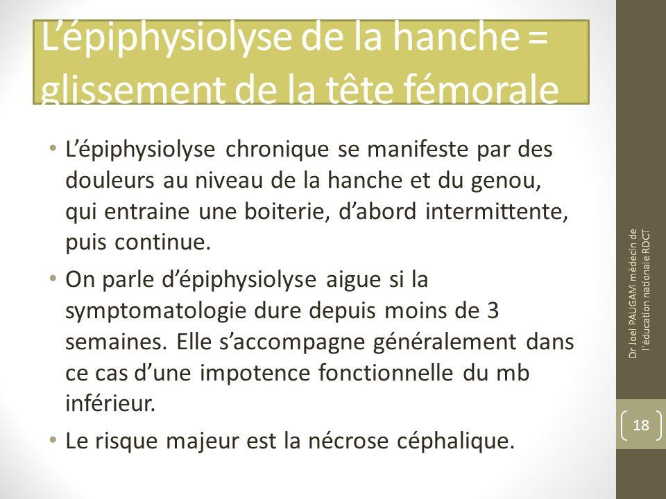 Lépiphysiolyse de la hanche = glissement de la tête fémorale Lépiphysiolyse chronique se manifeste par des douleurs au niveau de la hanche et du genou