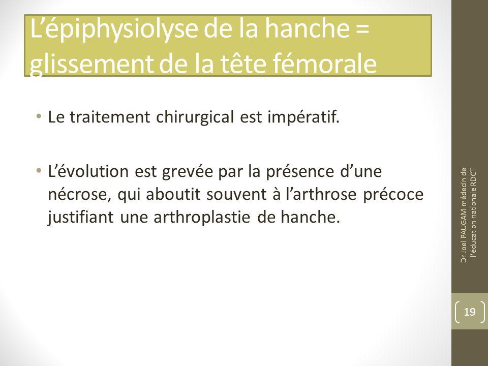 Lépiphysiolyse de la hanche = glissement de la tête fémorale Le traitement chirurgical est impératif.