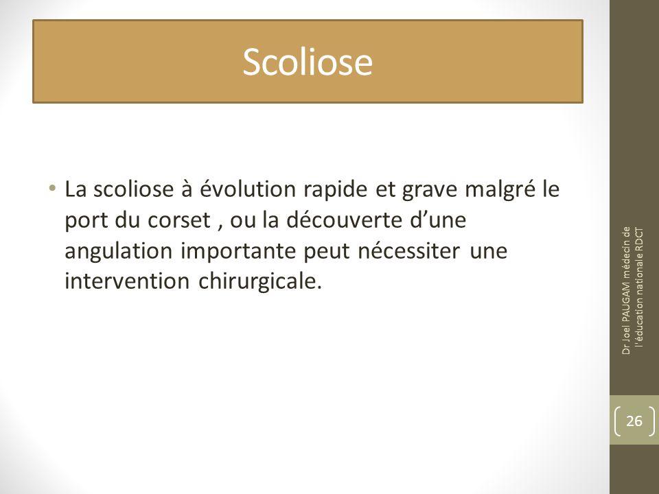 Scoliose La scoliose à évolution rapide et grave malgré le port du corset, ou la découverte dune angulation importante peut nécessiter une intervention chirurgicale.
