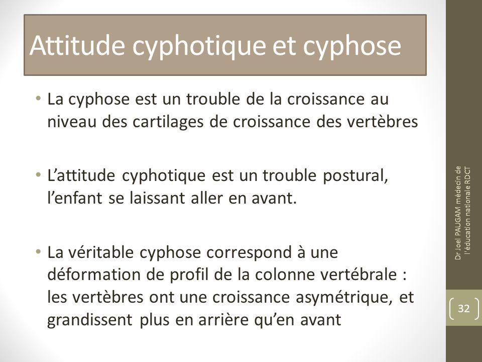 Attitude cyphotique et cyphose La cyphose est un trouble de la croissance au niveau des cartilages de croissance des vertèbres Lattitude cyphotique est un trouble postural, lenfant se laissant aller en avant.