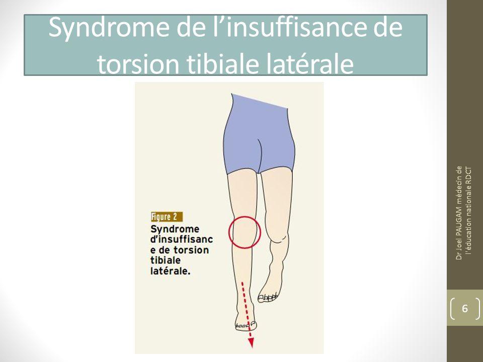 Syndrome de linsuffisance de torsion tibiale latérale Dr Joel PAUGAM médecin de l éducation nationale RDCT 6