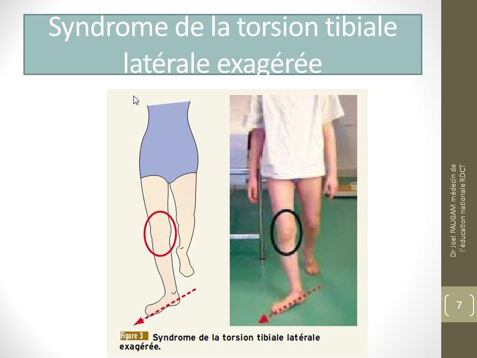 Syndrome de la torsion tibiale latérale exagérée Dr Joel PAUGAM médecin de l éducation nationale RDCT 7