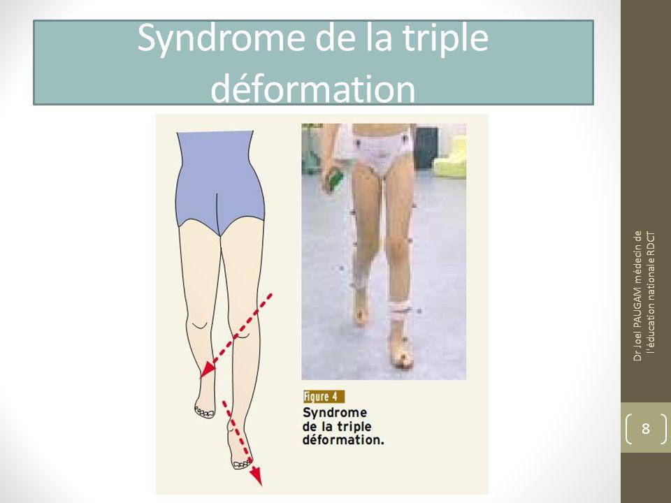Diagnostic différentiel Métatarsus adductus Paralysie cérébrale = la marche «pieds en dedans » est fréquemment révélatrice dune atteinte cérébrale modérée (diplégie ou hémiplégie spastique) Dysmorphie rotatoire unilatérale liée à un cal vicieux post fracturaire Epiphysiolyse = adolescent marchant les pieds en dehors (douleur au niveau de laine depuis plus de 3 semaines, diminution de rotation interne) Dr Joel PAUGAM médecin de l éducation nationale RDCT 9