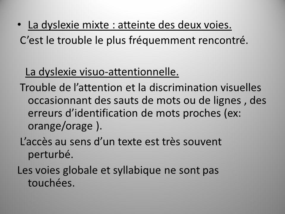 La dyslexie mixte : atteinte des deux voies. Cest le trouble le plus fréquemment rencontré. La dyslexie visuo-attentionnelle. Trouble de lattention et