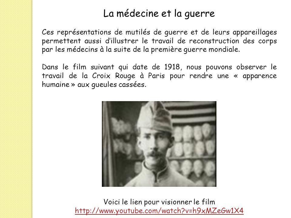 Ces représentations de mutilés de guerre et de leurs appareillages permettent aussi dillustrer le travail de reconstruction des corps par les médecins
