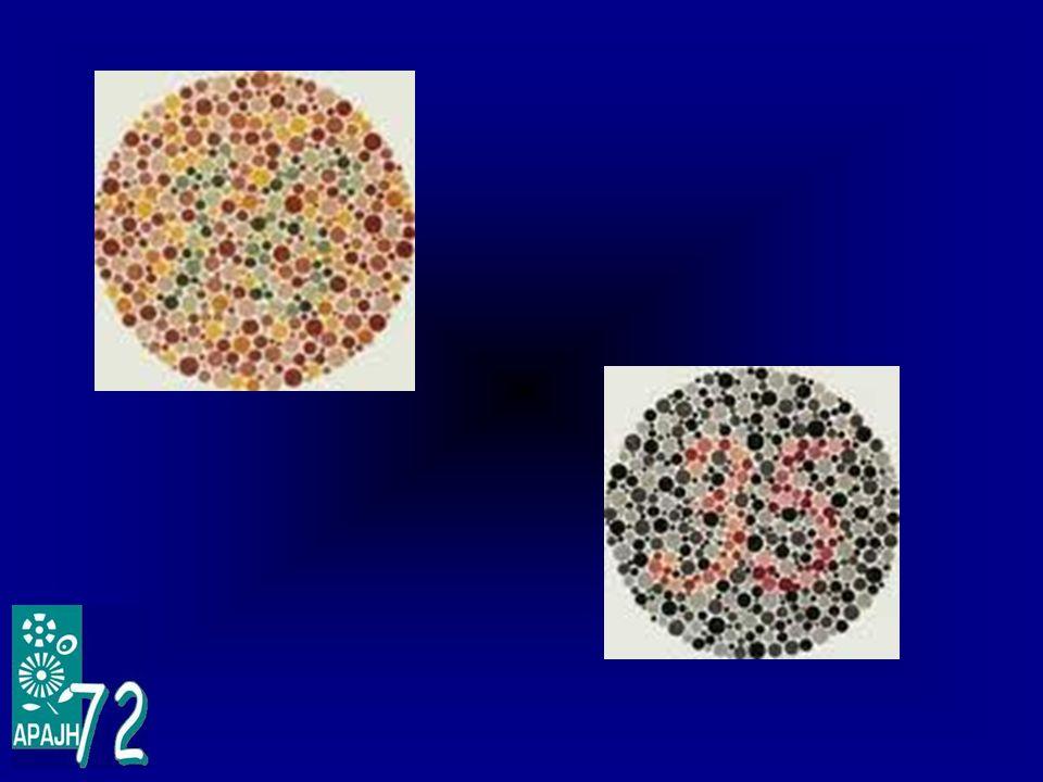 7 – Quelques conseils Aménagements, adaptations : Toujours prendre lavis dun professionnel (ophtalmologiste, orthoptiste) avant de les mettre en place.