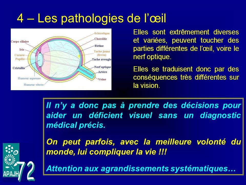 4 – Les pathologies de lœil Elles sont extrêmement diverses et variées, peuvent toucher des parties différentes de lœil, voire le nerf optique. Elles