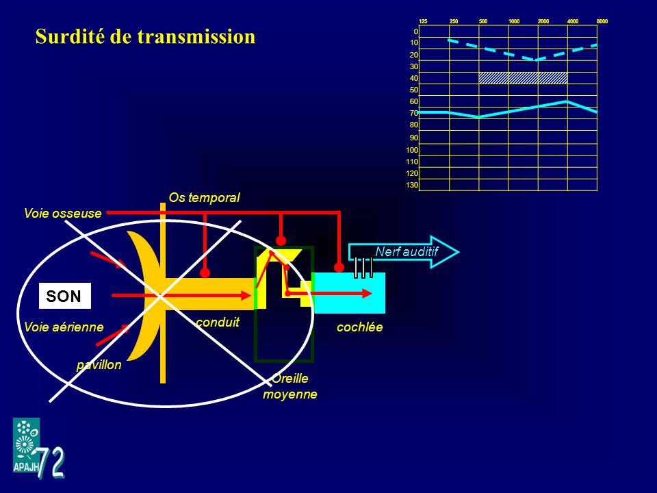 Surdité de transmission SON Voie osseuse Voie aérienne pavillon Os temporal conduit Oreille moyenne Nerf auditif cochlée 1252505001000200040008000 0 10 20 30 40 50 60 70 80 90 100 110 120 130