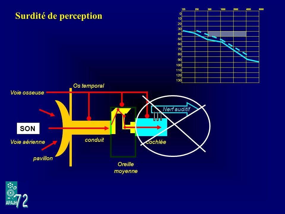 Surdité de perception SON Voie osseuse Voie aérienne pavillon Os temporal conduit Oreille moyenne Nerf auditif cochlée 1252505001000200040008000 0 10 20 30 40 50 60 70 80 90 100 110 120 130