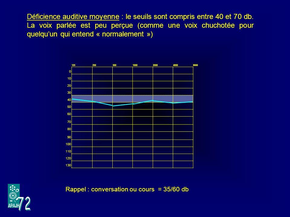 1252505001000200040008000 0 10 20 30 40 50 60 70 80 90 100 110 120 130 Déficience auditive moyenne : le seuils sont compris entre 40 et 70 db.