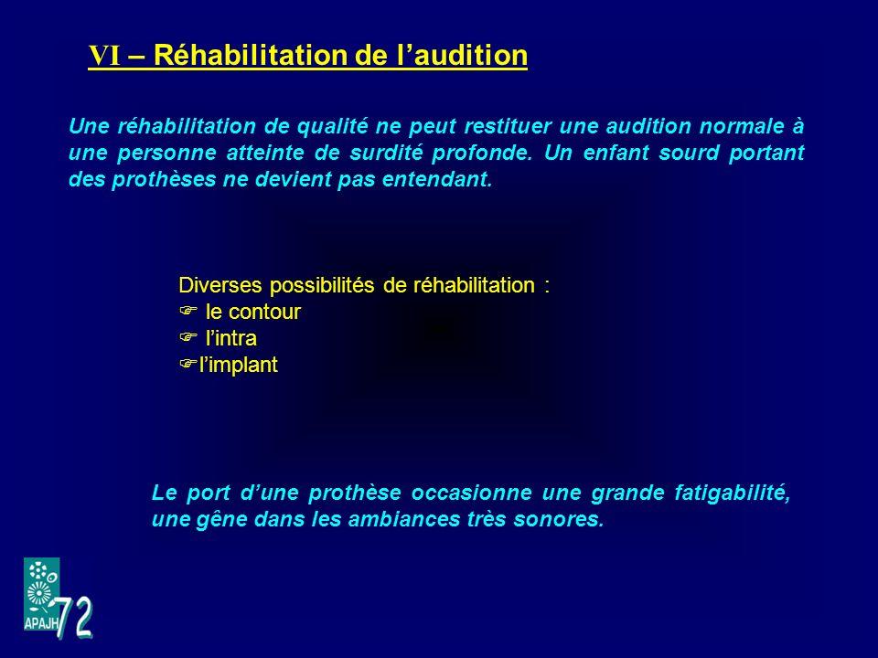 VI – Réhabilitation de laudition Diverses possibilités de réhabilitation : le contour lintra limplant Une réhabilitation de qualité ne peut restituer une audition normale à une personne atteinte de surdité profonde.