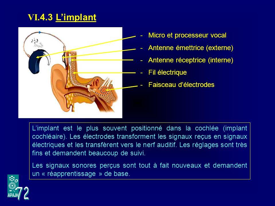 VI.4.3 Limplant -Micro et processeur vocal -Antenne émettrice (externe) -Antenne réceptrice (interne) -Fil électrique -Faisceau délectrodes Limplant est le plus souvent positionné dans la cochlée (implant cochléaire).
