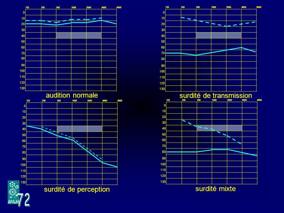 VI.4.1 – Le contour -Cest la prothèse la plus utilisée - Un micro capte les sons - Un circuit électronique intégré amplifie et transforme les sons -Une pile est intégrée -Lembout situé dans loreille amplifie et transmet les sons.