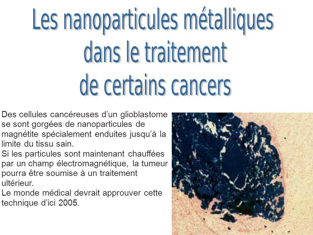Des cellules cancéreuses dun glioblastome se sont gorgées de nanoparticules de magnétite spécialement enduites jusquà la limite du tissu sain. Si les