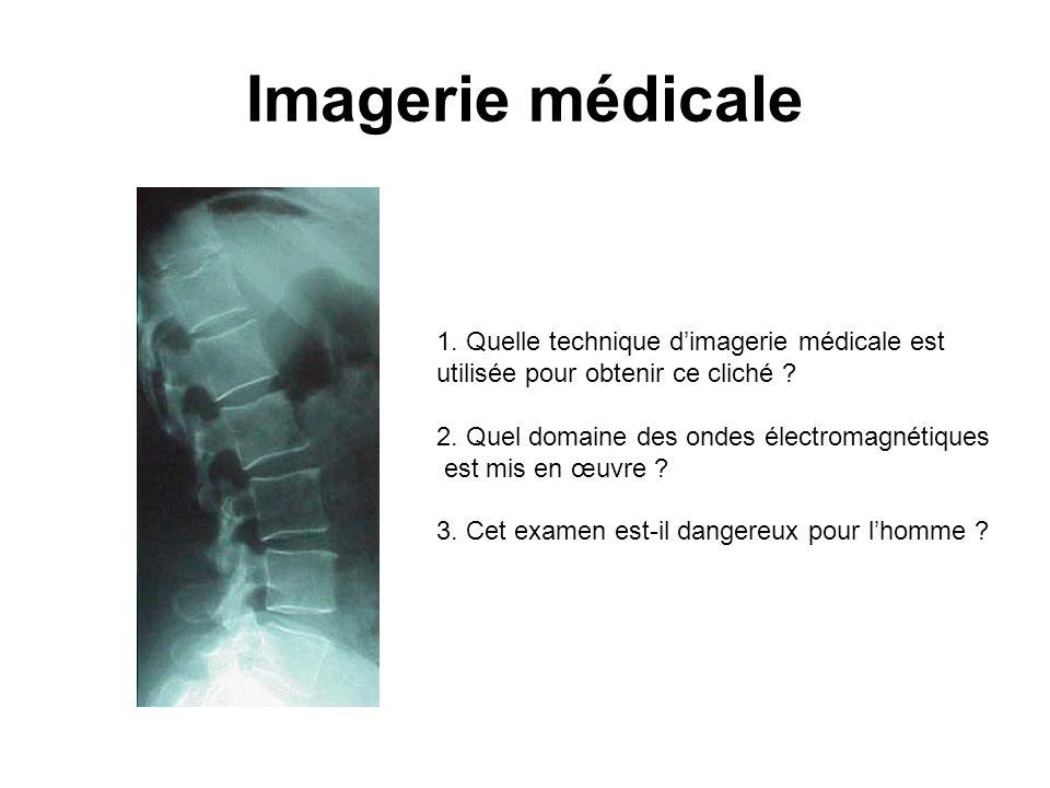 Imagerie médicale 1. Quelle technique dimagerie médicale est utilisée pour obtenir ce cliché ? 2. Quel domaine des ondes électromagnétiques est mis en