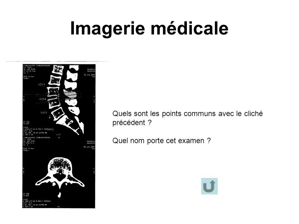 Imagerie médicale Quels sont les points communs avec le cliché précédent ? Quel nom porte cet examen ?