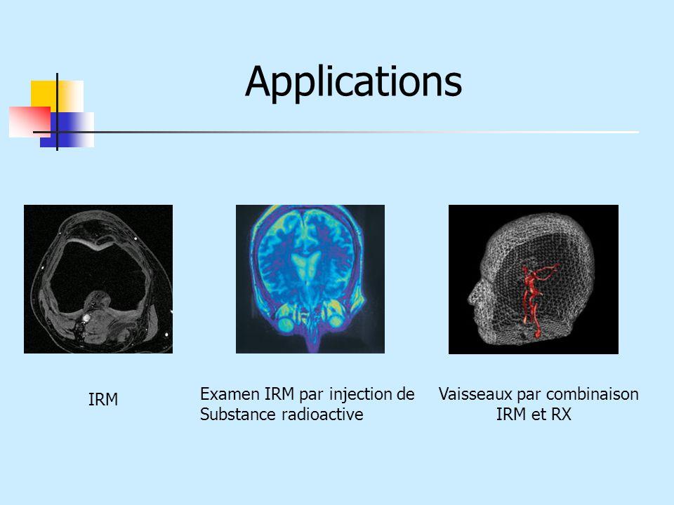 Applications Examen IRM par injection de Substance radioactive Vaisseaux par combinaison IRM et RX IRM