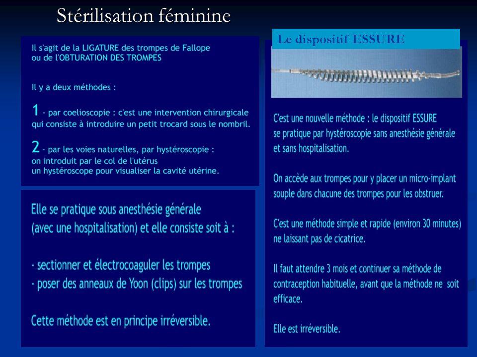 Stérilisation féminine Le dispositif ESSURE