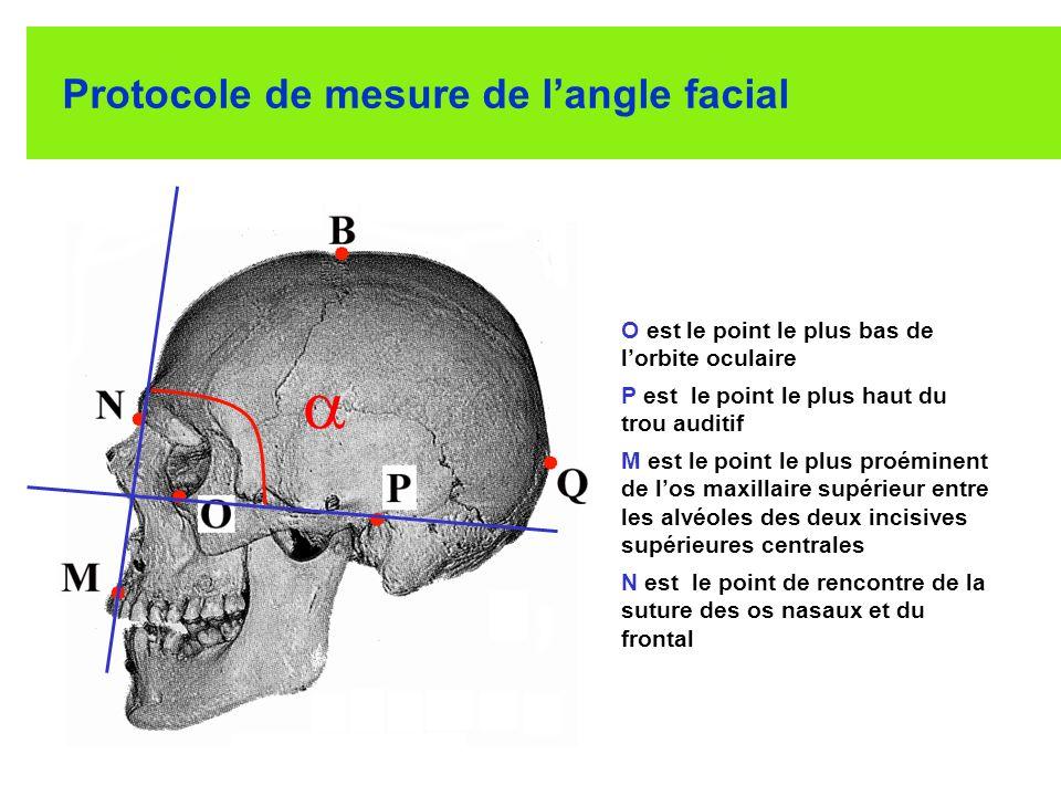 Protocole de mesure de langle facial O est le point le plus bas de lorbite oculaire P est le point le plus haut du trou auditif M est le point le plus