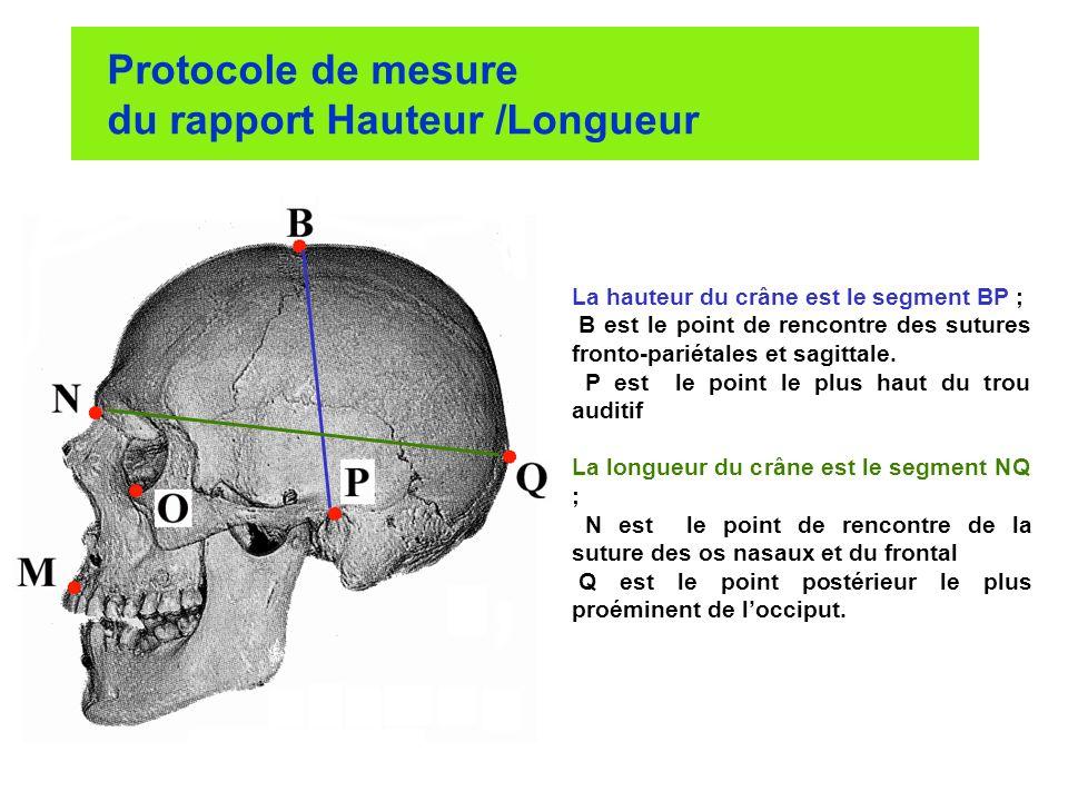 Protocole de mesure du rapport Hauteur /Longueur La hauteur du crâne est le segment BP ; B est le point de rencontre des sutures fronto-pariétales et