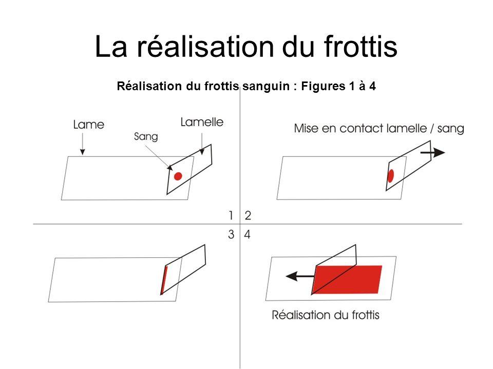 La réalisation du frottis Réalisation du frottis sanguin : Figures 1 à 4