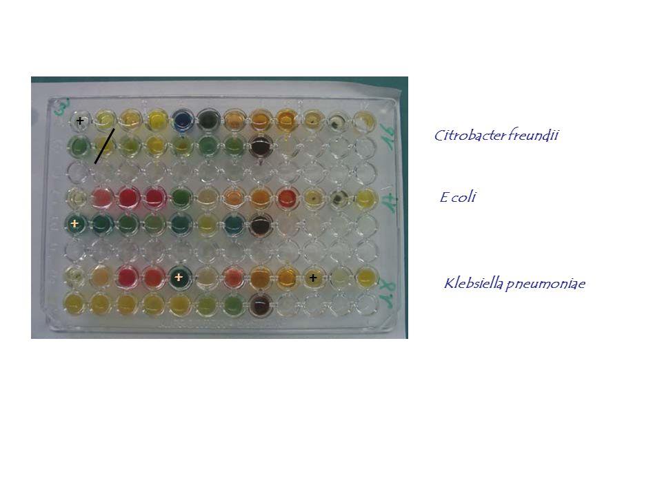 + Citrobacter freundii + E coli + + Klebsiella pneumoniae