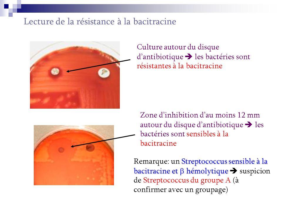 Lecture de la résistance à loptochine Culture autour du disque dantibiotique ou zone dinhibition peu importante les bactéries sont résistantes à l optochine Zone d inhibition autour du disque d antibiotique > 12 mm les bactéries sont sensibles à l optochine Remarque: u uu un Streptococcus sensible à loptochine et hémolytique suspicion d un pneumocoque.(à confirmer par une identification antigénique)