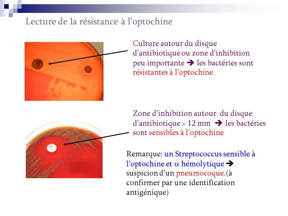 Groupage des Streptococcus 1 ère étape: extraction de lAg à identifier Elle consiste en lextraction de lAg polyosidique C sous laction dune enzyme.