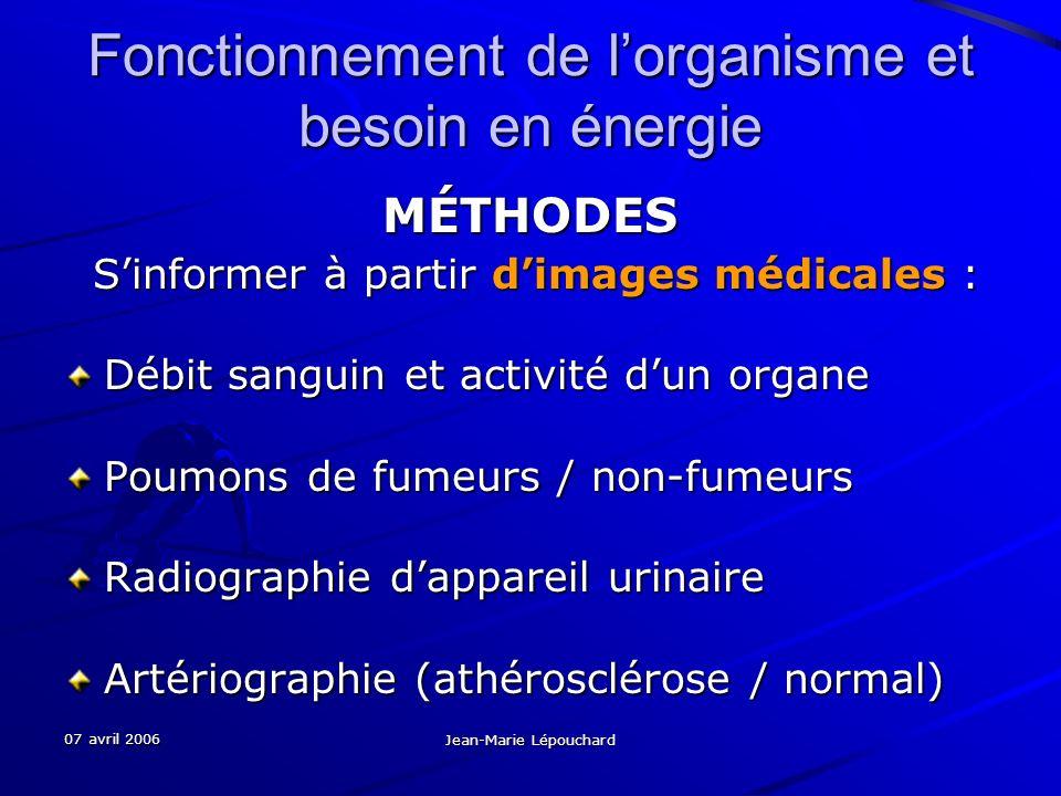 07 avril 2006 Jean-Marie Lépouchard Fonctionnement de lorganisme et besoin en énergie MÉTHODES Sinformer à partir dimages médicales : Sinformer à part
