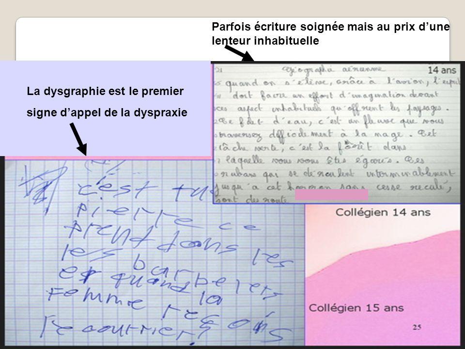 La dysgraphie est le premier signe dappel de la dyspraxie Parfois écriture soignée mais au prix dune lenteur inhabituelle