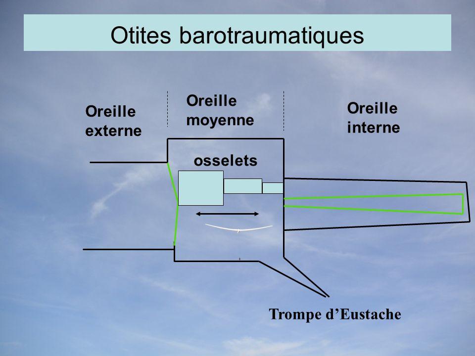 Otites barotraumatiques Oreille externe Oreille moyenne Oreille interne osselets Trompe dEustache